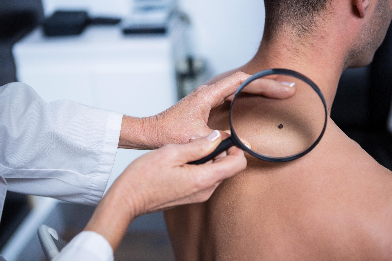 Skin Cancer Medicine And Surgery With Dr Nick Mouktaroudis At Partridgegp Partridgegp